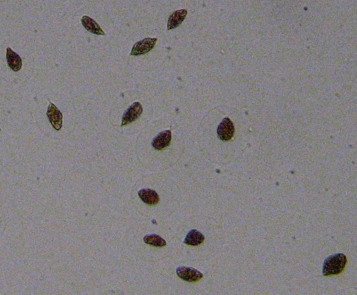 Swimming Haematococcus