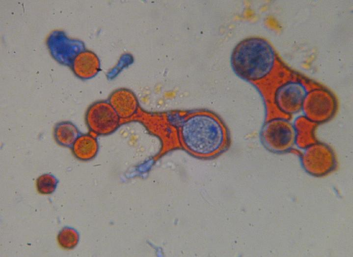 Haematococcus Spores Stained